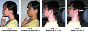 Forward Head Posture Fix by Mike Westerdal (3)